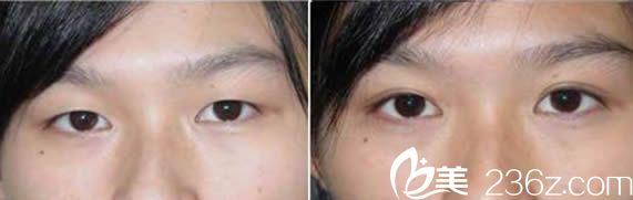 福州伊薇全切双眼皮整形案例及术后三个月对比图
