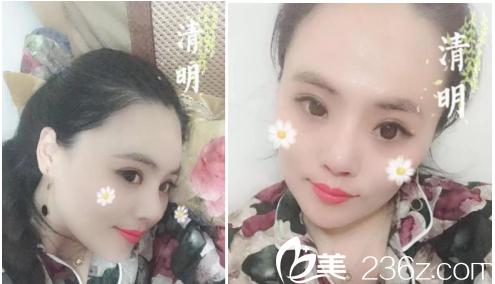 2018.07.23在济南做的鼻修复手术,花了我三万多,现在结果就是这个样子