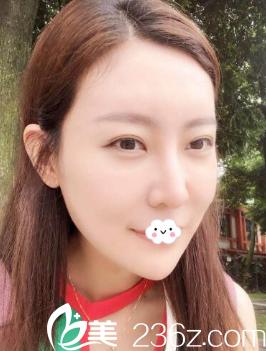天津联合丽格复合式面部线雕提升10天效果图