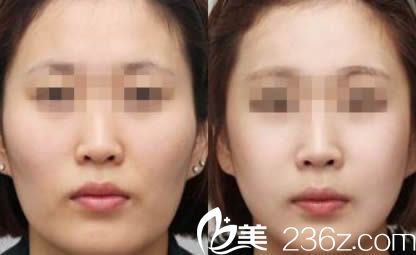南京维多利亚自体脂肪面部填充案例对比图
