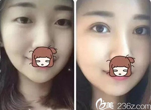 赣州亚韩双眼皮手术案例