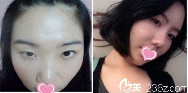 赣州虔美整形医院双眼皮手术案例