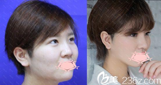 合肥维多利亚整形膨体假体鼻综合隆鼻对比图