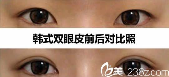韩式双眼皮前后对比案例