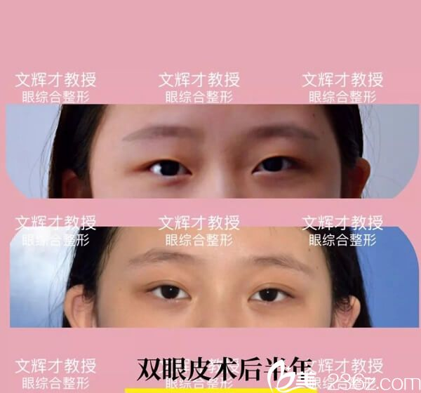文辉才教授双眼皮手术案例分享