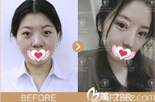 南京维多利亚整形双眼皮+鼻综合+玻尿酸案例效果
