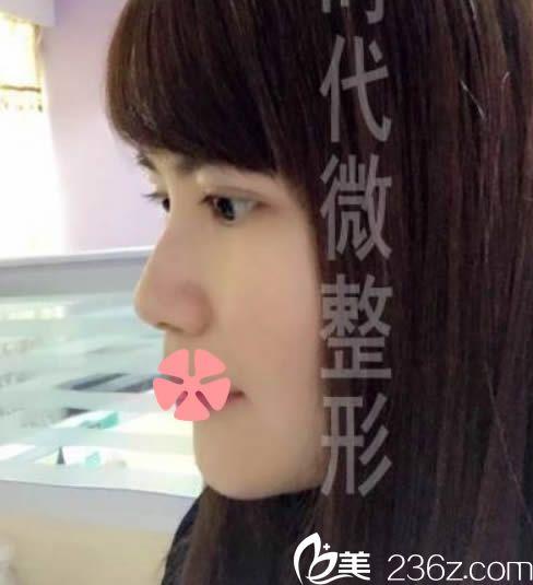 我去福州新时代整形做了韩式无痕双眼皮+鼻综合隆鼻+玻尿酸丰下巴,来晒美照喽