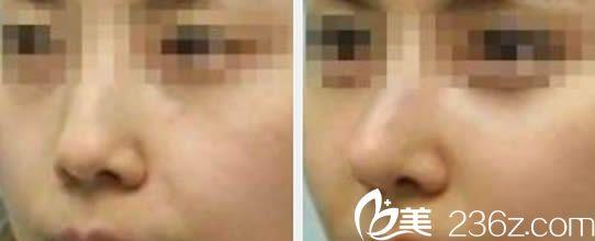 福州桃子鼻综合隆鼻案例及7天后对比照