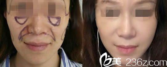福州桃子脂肪填充全脸第5天照片及对比效果