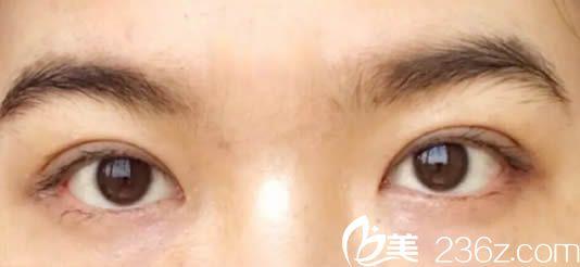 我2017年去福州桃子整形做了全切双眼皮,现分享我的7.5mm双眼皮案例及一年后照片