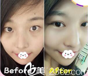 昆明五华雅妍割双眼皮真人案例