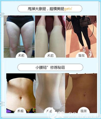 南宁梦想陈建军做的大腿吸脂和腰腹部抽脂案例
