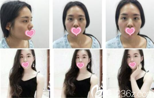 上海艺星自体脂肪面部填充真人案例
