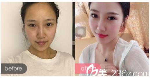 汕头大都汇医疗美容诊所刘少顺医生做的双眼皮案例