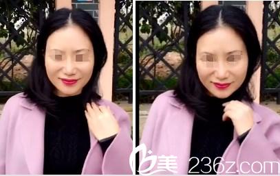 分享我在南宁高广华做面部自体脂肪填充1个月后同事都说我年轻了5岁不止