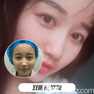上海美莱杜园园做的双眼皮修复案例对比图