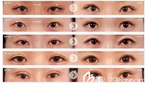 双眼皮霜的原理_秒变大眼睛 不动刀30秒,就能拥有迷人的双眼皮