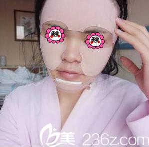 柳成医生给我做自体脂肪面部填充第3天样子