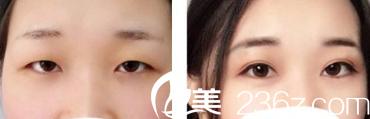 昆明海迪尔医疗美容整形医院双眼皮案例