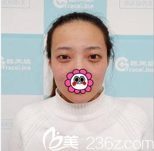北京伟力嘉美信医疗美容门诊部马永奇术前照片1