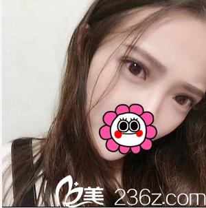 在北京伟力嘉美信割双眼皮第28天效果