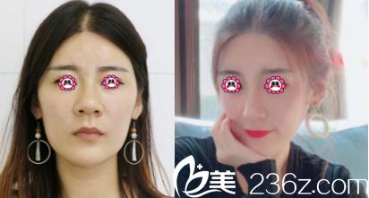 北京金燕子鼻综合隆鼻案例