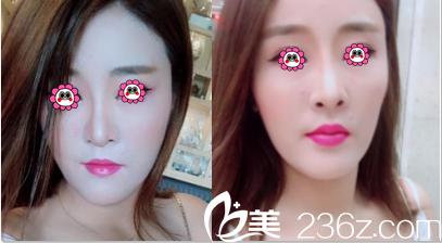 北京金燕子玻尿酸丰唇案例