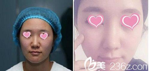 青海米澜之星隆鼻案例