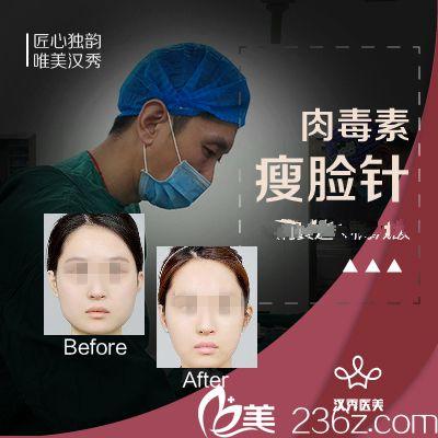 武汉汉秀瘦脸针案例