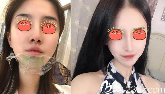 杭州甄美尹凯注射瘦脸针案例