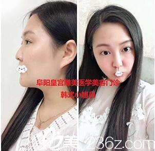 阜阳皇宫雕美韩式小翘鼻综合隆鼻案例