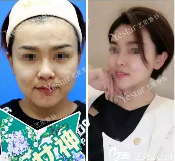 南京艺星整形美容医院赵雪愔术后照片1