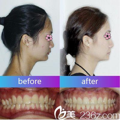 深圳美莱口腔医院美式金属牙齿矫正正牙案例
