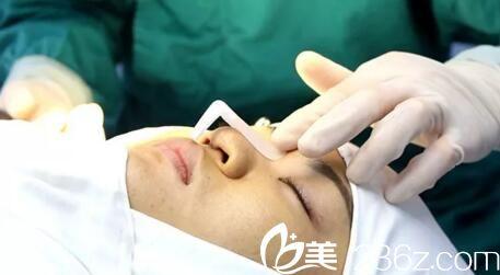 鼻整形术前设计
