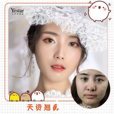 深圳yestar牛克辉做的鼻综合隆鼻案例