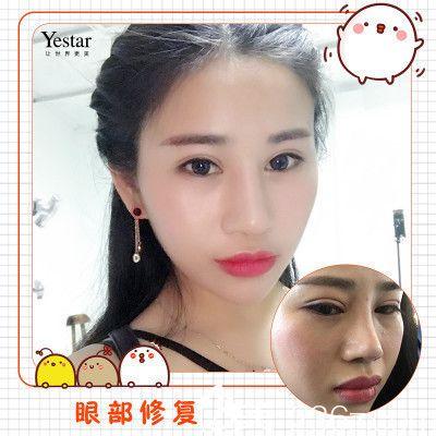 深圳艺星潘华做的双眼皮修复案例