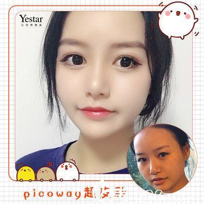 深圳yestar整形医院莎综合美眼双眼皮案例