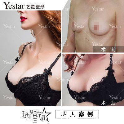 深圳艺星常德成做的假体隆胸案例