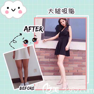 深圳yestar整形医院常德成做的大腿吸脂案例
