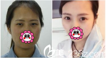 北京田永成医院切开双眼皮案例