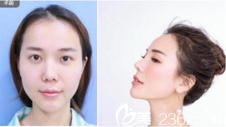 李德庆医生鼻修复案例