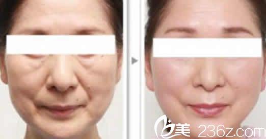 运城薛大夫整形全脸线雕提升案例效果图