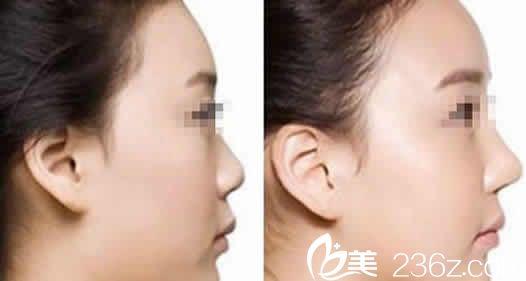 运城薛大夫整形鼻综合案例前后对比图