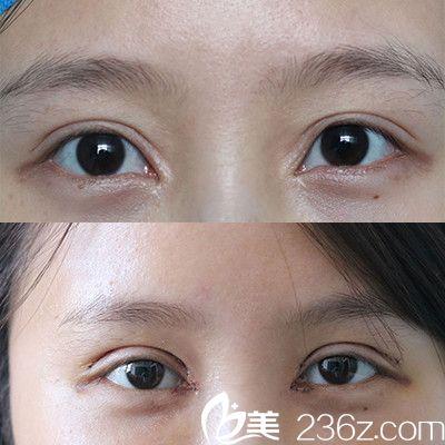 北京八大处靳小雷做的内眼角修复案例图