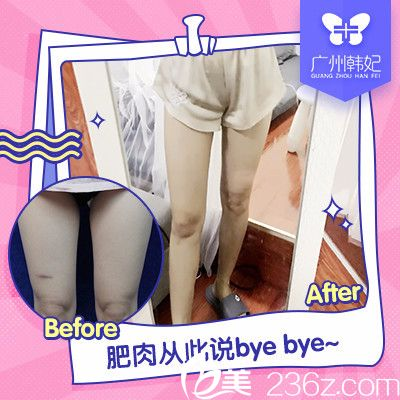 广州韩妃于洪瑞大腿吸脂案例对比图