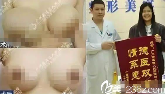 广州荔医邓正军胸部奥美定取出案例