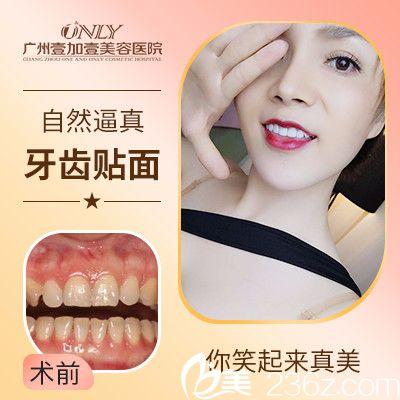 广州壹加壹口腔苏文新做的牙齿瓷贴面整牙案例