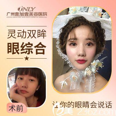 广州壹加壹年终优惠整形价格表 双眼皮1280元,牙齿矫正4000元,植发7800元