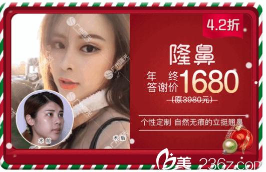 广州曙光蒋思军隆鼻1680元附案例