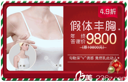 广州曙光刘杰伟隆胸案例9800元附案例